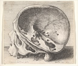 Sectioned skull in profile to left with the left side of the cranium removed, 1651. Creator: Wenceslaus Hollar.