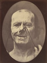 Figure 53: Whimpering and false laughter, 1854-56, printed 1862.