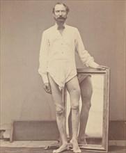 Gunshot Wound of Middle Third of Left Femur, 1865-67.