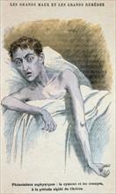 Un malade du choléra dans une position caractéristique (vers 1890)
