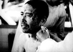 Hiroshima. Victime de la bombe atomique.