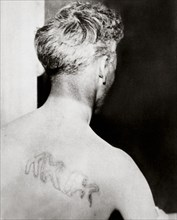 The branded back of Reverend Orrin Van Loon, Detroit, Michigan, USA, July 1924. Artist: Unknown
