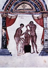 Mandibular reduction, miniature in the Surgery Codex in Comments of Apollonius, by Cizio the 8th ?