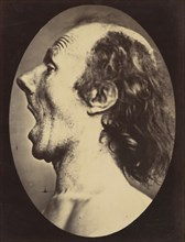 Figure 55: Astonishment badly rendered by the subject: a ridiculous and inane expression. , 1854-56, printed 1862.
