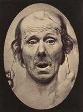 Figure 56: Surprise, 1854-56, printed 1862.