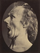 Figure 57: Astonishment, stupefaction, amazement, 1854-56, printed 1862.