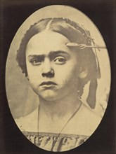 Figure 10: Showing the expressive lines of m. frontalis in a young girl , 1854-56, printed 1862.