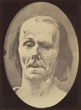 Figure 9: A study of m. frontalis in maximum contraction, 1854-56, printed 1862.