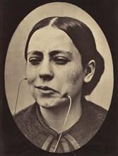 Figure 36: Scornful laughter and scornful disgust, 1854-56, printed 1862.