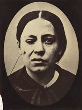 Figure 50: Affected weeping and face in repose, 1854-56, printed 1862.