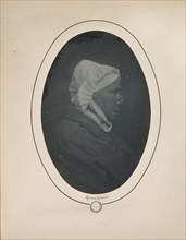 [Profile of a Woman with Necrosis of the Nose], 1841-48.