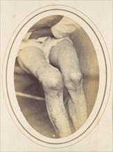 Frederick Hohmann, 1865.