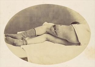Judson C. Albright, 1865.