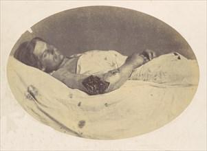 Frederick Pilgrim, 1865.