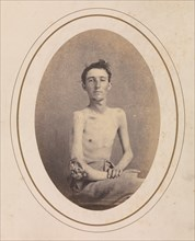 Private James H. Stokes, Company H, 185th New York Volunteers, April-May 1865.