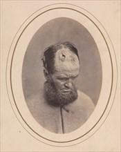 Private John Parkhurst, Company E, Second New York Heavy Artillery, 1865.