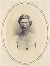 Frederick A. Bentley, 1865.