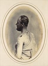Henry Yon, 1865.
