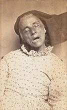 Louisa Blaney, 1870s.