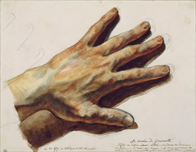 The left hand of  Théodore Géricault. Found in the collection of Musée du Louvre, Paris.