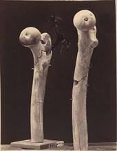 Specimens of Gunshot Fractures of the Femur, c. 1867.