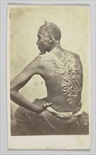 Gordon Under Medical Inspection, 1863. Creator: McPherson & Oliver.