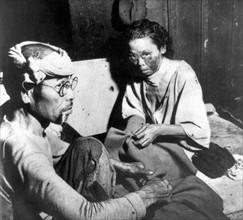 Blessés après l'explosion de la bombe atomique sur Hiroshima